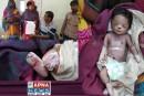 बिहार: दरभंगा मेडिकल कॉलेज और हॉस्पिटल में नवजात बच्चे को I.C.U में चूहों  ने काट काट कर ली जान.